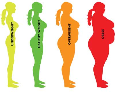 obese-pic
